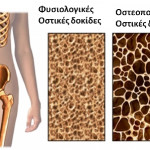Οστεοπόρωση= Ελάττωση Οστικών δοκίδων